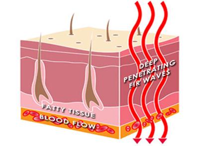 Deep Penetrating Therapeutic Heat